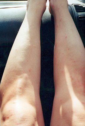 mosquito-bitten legs